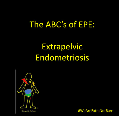 View The ABC's of EPE  Extrapelvic Endometriosis by Wendy L Bingham, DPT